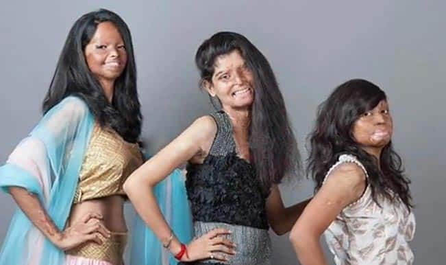 Indian acid attack victims poses boldly for inspirational photo shoot