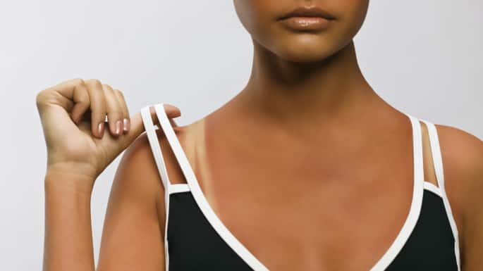 10 Things You Need to Know about Sunscreen for Darker Skin