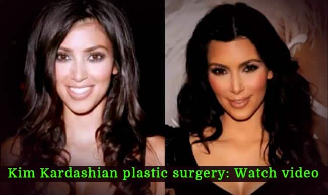 Kim Kardashian before and after plastic surgery (Watch video)