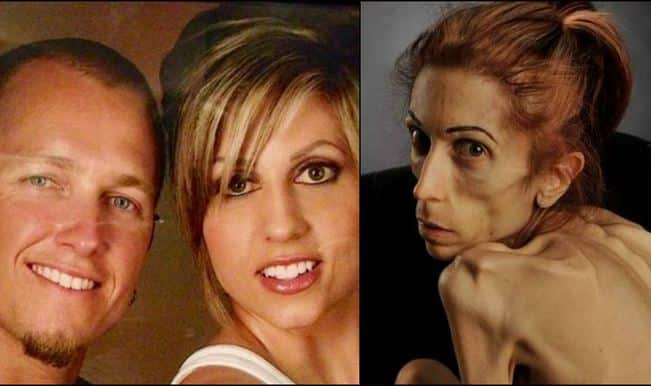 Anorexic California woman Rachael Farrokh pleads for HELP! (Watch video)