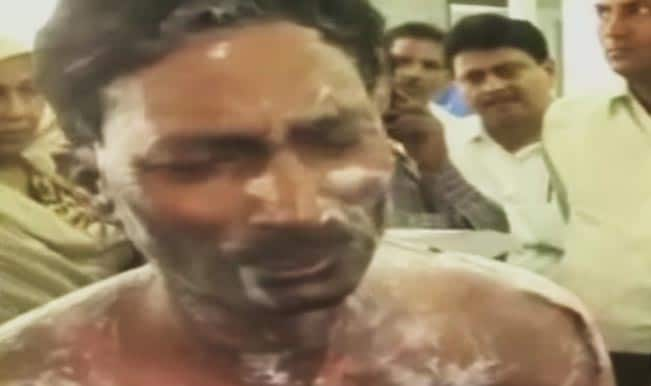 Journalist Jagendra Singh says police set him ablaze (Watch viral video)