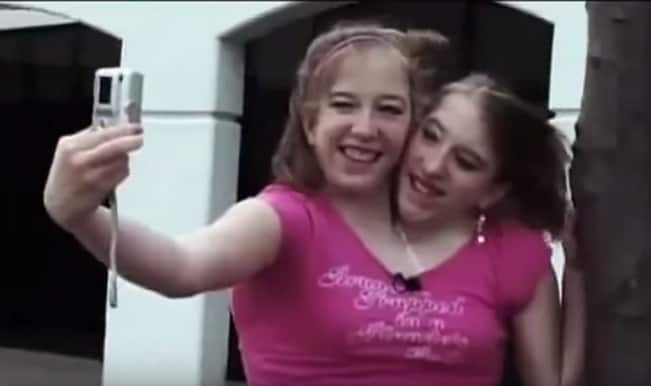 The Twins Who Share A Body: Watch story of Abigail and Brittany Hensel's life
