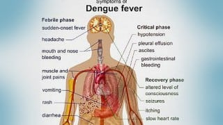 Dengue Fever: All you need to know about its symptoms and precautions
