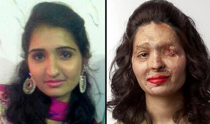 Acid attack survivor Reshma Quereshi's beauty tips on red lips make a point against acid sale!