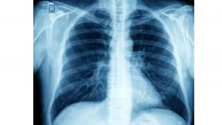 ‪World TB Day 2018‬‬: This Year's Theme, How Is Tuberculosis Spread, How You Can Treat ‪‪Tuberculosis