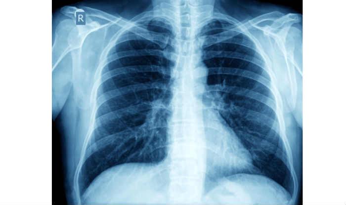 tuberculosis12