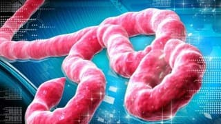 How Sexual Transmission Increases Speed of Ebola Virus Infection?