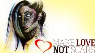 Make Love Not Scars Seeks to Empower Acid Attack Survivors