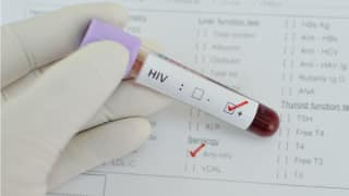 According to Experts, HIV is Not a Death Sentence in United States