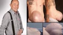 67-year-old man suffering from football-sized hernia bursting out of stomach