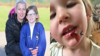 7 साल की बच्ची को है हैरान करने वाली बीमारी, दुनिया की पहली लड़की इस बीमारी से ग्रस्त