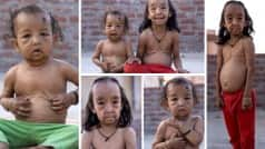 Benjamin Button brother-sister duo suffer from wrinkly rare skin disease, making them look years older