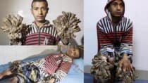 'Tree Man' Abul Bajandar to get rid of tree-like roots from hands and feet soon