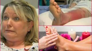 Watch out! This woman got fatal infection after painful pedicure at salon