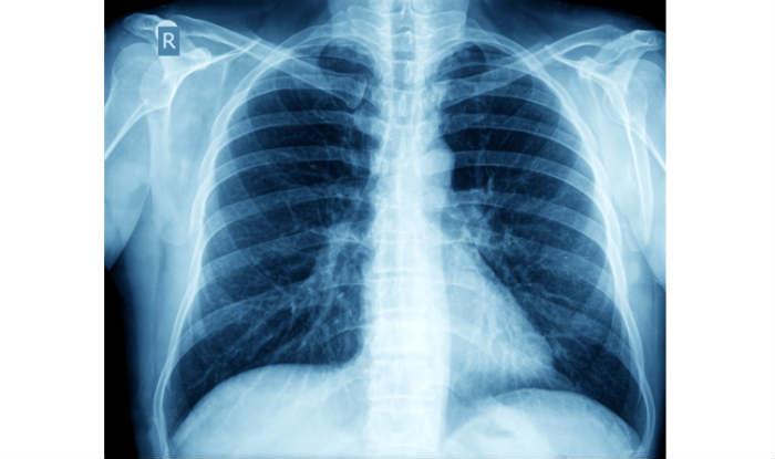 टीबी के उपचार में नहीं लगेगा लंबा समय, कम अवधि की दवा हुई तैयार