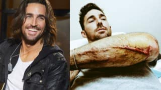 Jake Owen injured in motorcycle accident