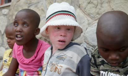Shocking! Albinos are being abducted, killed, mutilated in Malawi, Africa to use their body parts in superstitious rituals