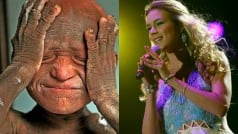 British singer Joss Stone raises funds for 11-year-old who is turning into a stone due to tragic skin condition