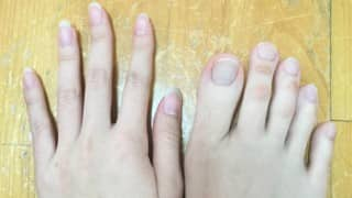 This Tiawanese girl has toes that are as long as her fingers!