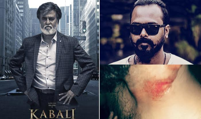 Bravo! Kabali fan Vasanth Paul saves girl from being gang-raped and is injured himself! True hero!