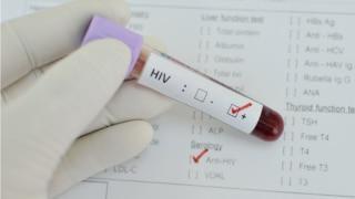 Austrian researchers develop potential AIDS treatment breakthrough