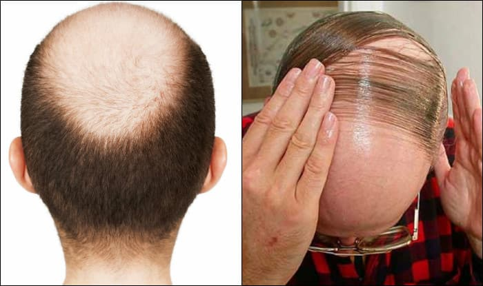how to take care of hair in hindi