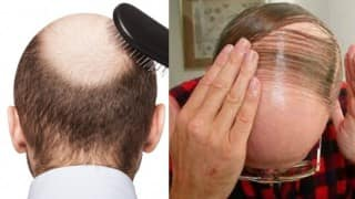 South Korean Scientists Claim to Have Found Cure For Baldness: Report