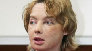 Isabelle Dinoire, who received world's first face transplant dies at 49