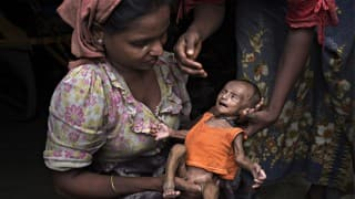 High Court concerned over 17,000 deaths due to malnutrition in Maharashtra