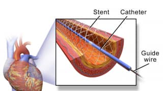 Central government slashes prices of cardiac stents by up to 85%, much-needed relief to lakhs of patients