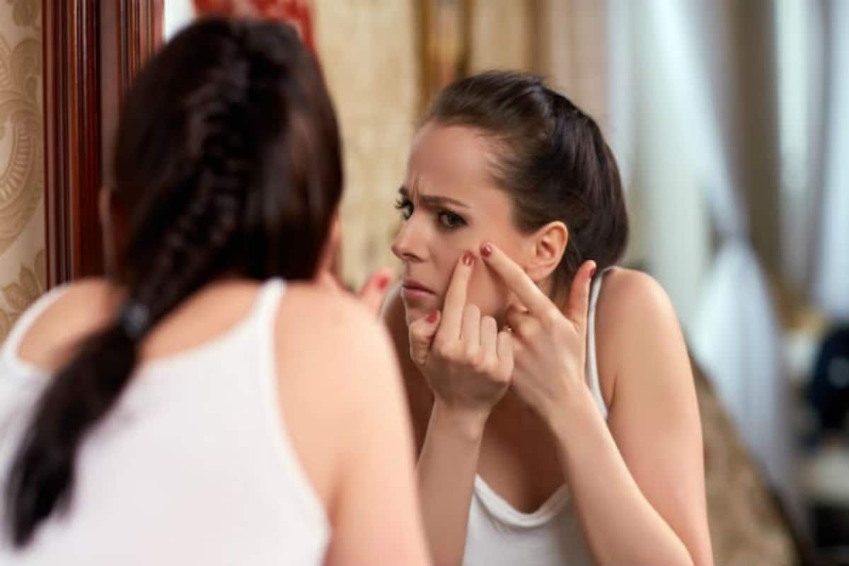 Image result for Prevent Pimples