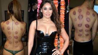 Sofia Hayat strips down to panty with fiance for cupping therapy! Bold pictures breathe fire on Instagram
