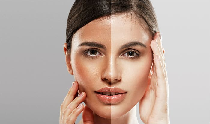 How To Get White Colour Skin Naturally