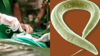 Indian doctors operate to remove 6-inch long roundworm from infant's liver: Delhi medics claim it to be second case in world!