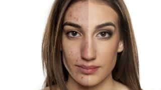 Top 9 frequently asked questions about acne, answered!