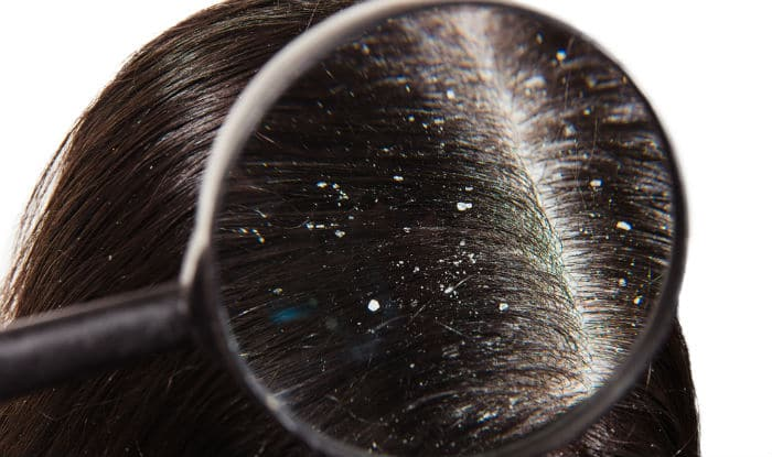 Top 8 frequently asked questions about dandruff, answered!