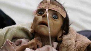 यमन में हैजा से अब तक 11 सौ लोगों की मौत, सऊदी अरब ने किया मदद का ऐलान