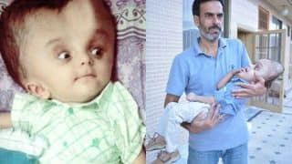 Pakistani Baby with enlarged head undergoes life-saving surgery in US, thanks to a Good Samaritan! (See Pictures)