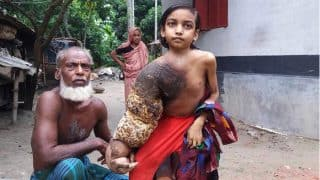 'Tree Man' Disease is Making This Bangladeshi Girl's Chest and Hand Look Like Bark