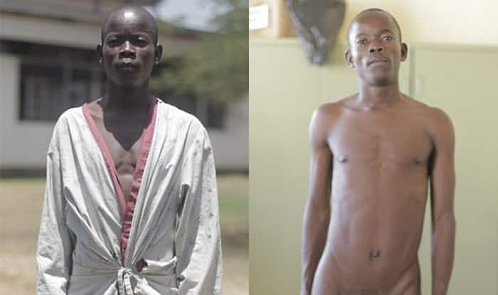 Kenyan Man With Worlds Biggest Testicles Gets Surgery
