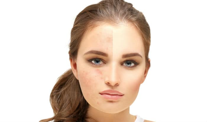 3 Diy Face Masks To Get Rid Of Acne Scars At Home India Com