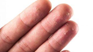 Fingertips Peeling : 5 Tips to Get Rid of Peeling Skin from Fingertips