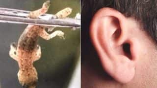 Doctors Remove Lizard From Chinese Man's ear, Fail to Find its Tail (See Picture)