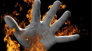 Uttar Pradesh: Girl Burnt Alive by Unidentified Miscreants in Unnao, Dies