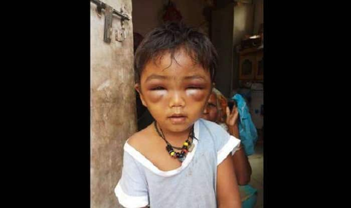 3-year-old boy beaten up by tuition teacher in Pune (Image Credit: DNA)