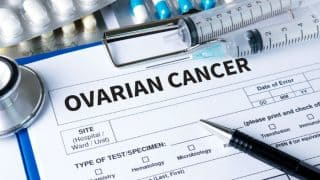 Ovarian Cancer: Causes, Symptoms and Treatment of This Silent Killer