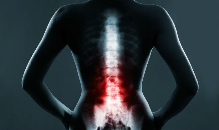 Spine से जुड़ी बीमारियों में यह सर्जरी है बहुत कारगर, मरीजों को जल्द मिलती है राहत
