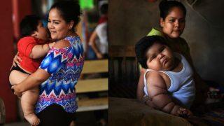 9 साल के बच्चे जितना है इस 10 महीने के बच्चे का वजन, डॉक्टर भी हैरान