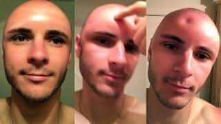 Sunburn Pics of This Man Are Viral: Dent on His Swollen Head is Scary