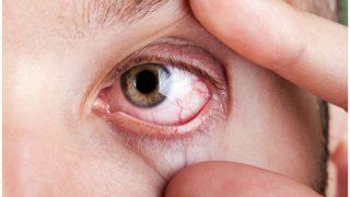 Health Alert: मोबाइल की ब्राइटनेस बढ़ाकर करती थी इस्तेमाल, आंख में हुए सैकड़ों छेद, जानिए पूरी वजह